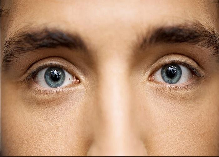 Có nốt ruồi trong lòng trắng mắt